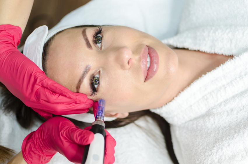 7 Ways Microneedling Can Change Your Skin for the Better